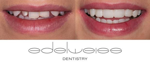 Edelweiss direkte Zahnverblendungen