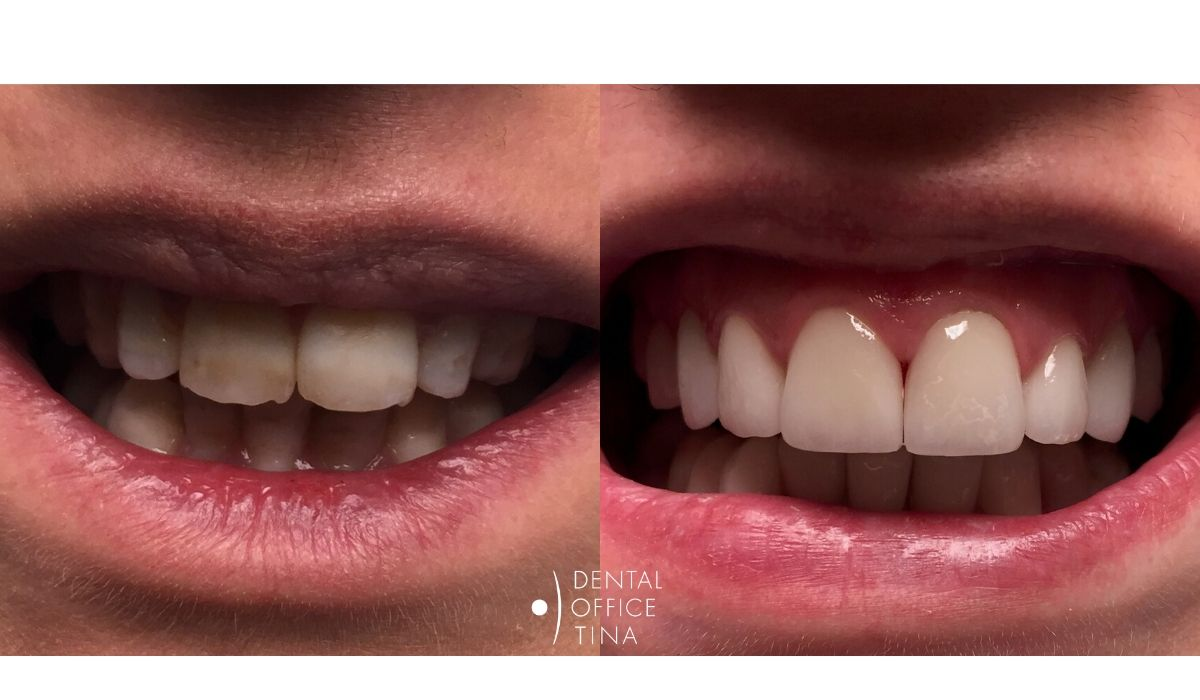 tetraciklinski zubi keramičke ljuskice