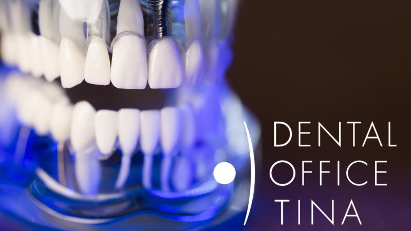 kako izgleda zubni implantat