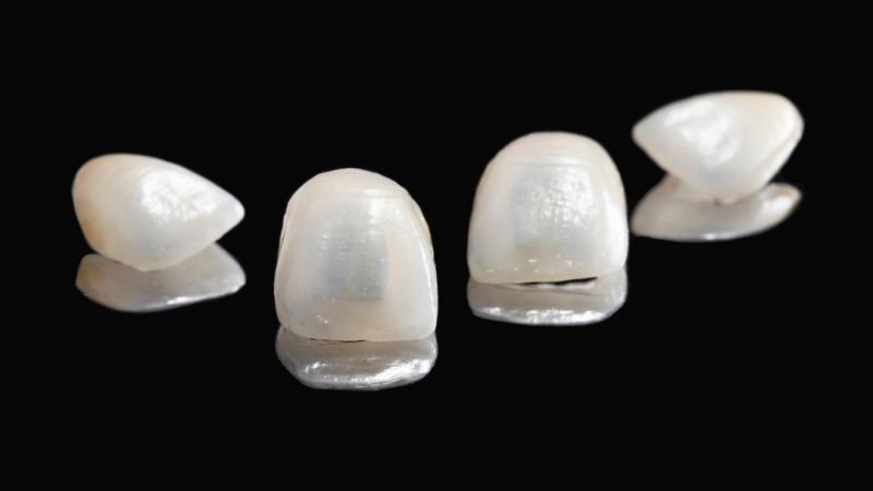 Sve vrste zubnih ljuskica koje nudimo u našoj stomatološkoj ordinaciji