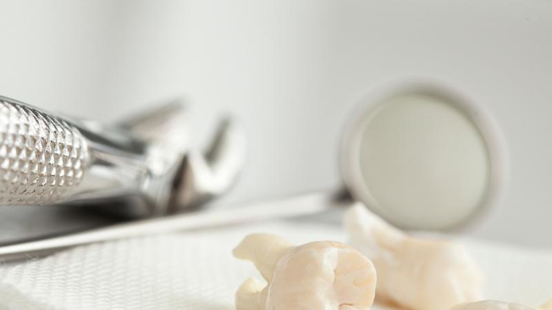 vađenje umnjaka ispod mesa dental office tina